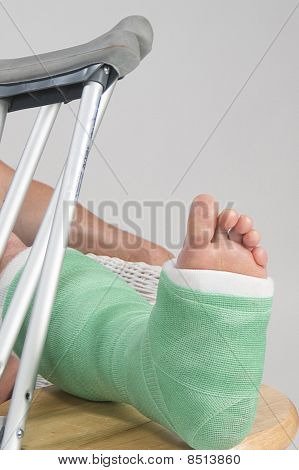 Broken ankle with cast.