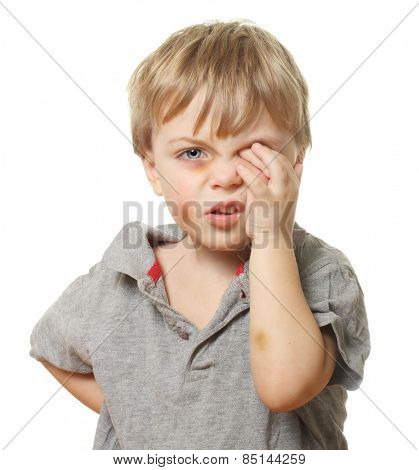 Child with bruise wiping tears isolated on white background. Domestic and family violence concept.