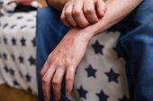 Closeup Men Itching And Scratching By Hand. Psoriasis Or Eczema On The Hand. Atopic Allergy Skin Wit poster