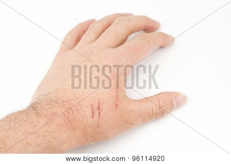 Hand with the scratch