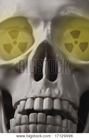 Radioactive head