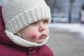 Sad And Frightened Little Boy With Bruise Injury On Face Winter Outside. Abuse And Bullying Concept. poster