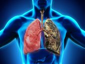 image of smoker  - Healthy Lung and Smokers Lung - JPG