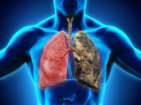 foto of frontal lobe  - Healthy Lung and Smokers Lung - JPG