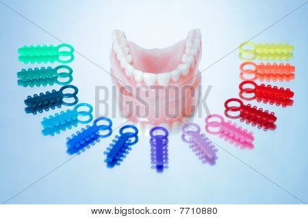 Dentures surrounded by multicolored orthodontic ligature ties