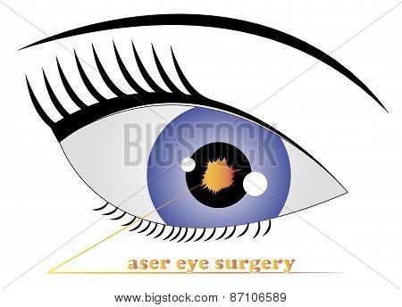 Laser Eye Surgery Logo