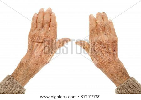 Old Hands With Artritis