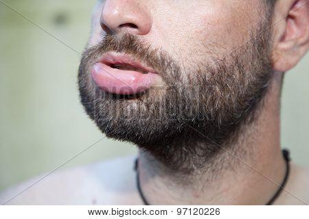 Swollen Lip