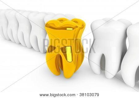 Dente de ouro de Closeup extrema