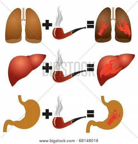 Disease from smoking
