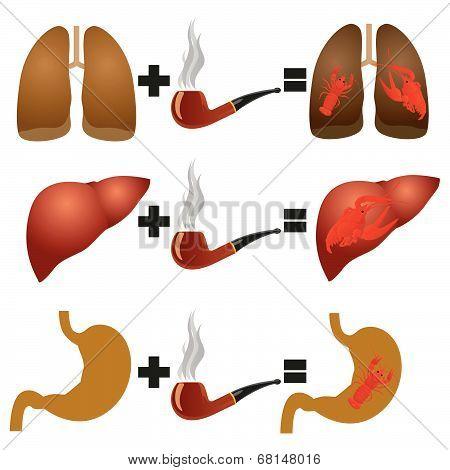 Disease from smoking