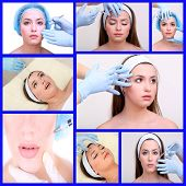 image of lip augmentation  - Plastic surgery collage - JPG