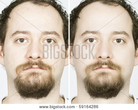 Man with spotty skin with deep pores and blackhead and healed soft skin
