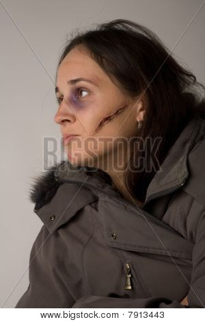 Woman With Cicatrice And Bruise On Her Face