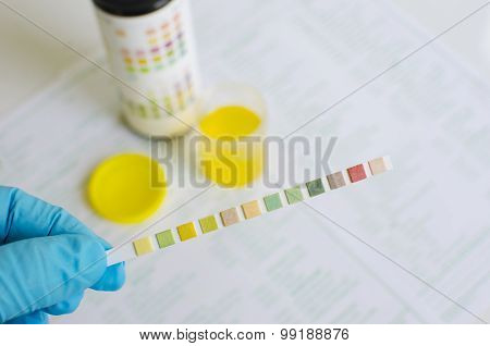 Urine analysis