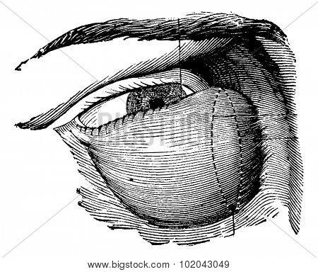 Highly Developed Lacrimal Tumor, vintage engraved illustration. Usual Medicine Dictionary by Dr Labarthe - 1885