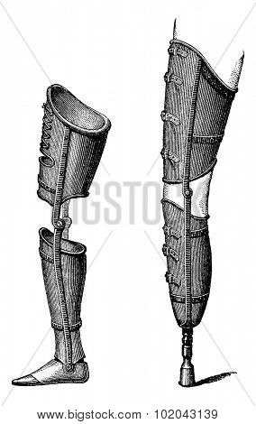 Artificial Legs, shown with foot (left) and with pestle (right), vintage engraved illustration. Usual Medicine Dictionary by Dr Labarthe - 1885