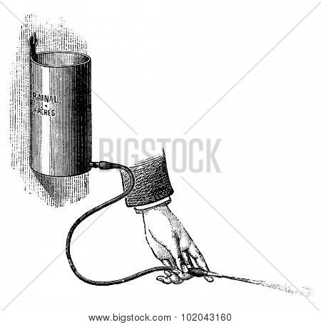 Bladder Irrigator, vintage engraved illustration. Usual Medicine Dictionary by Dr Labarthe - 1885