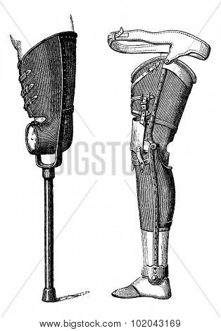 Artificial Legs Non-Bendable at the Knee (left) and Bendable at the Knee (right), vintage engraved illustration. Usual Medicine Dictionary by Dr Labarthe - 1885