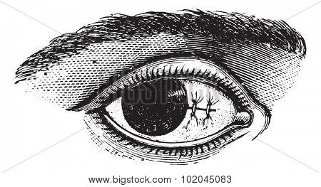 Suture of the conjunctiva after excision of pterygium, vintage engraved illustration. Usual Medicine Dictionary by Dr Labarthe - 1885.
