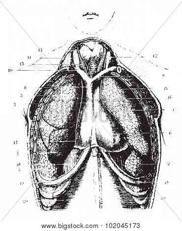 Cutting the chest area for a show available lungs, pleura and pericardium, vintage engraved illustration. Usual Medicine Dictionary by Dr Labarthe - 1885.