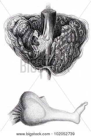 Anatomy of encephaloid tumor that requires amputation at the thigh, vintage engraved illustration.