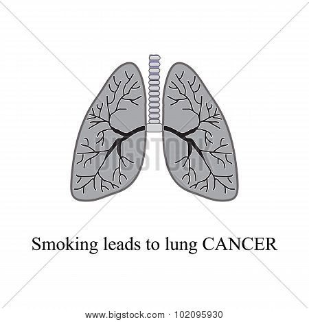 Smoking leads to lung cancer. Vector illustration on isolated background