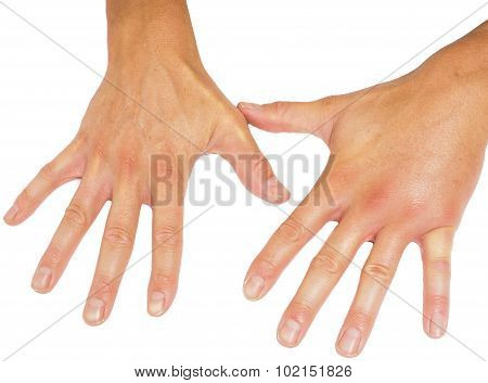 Comparing Swollen Male Hands Isolated