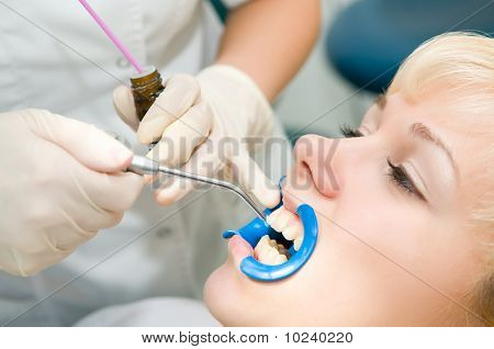 Dental Teeth Treatment