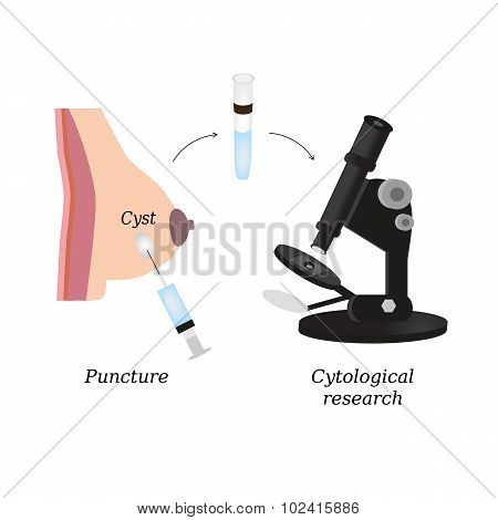 Puncture of cysts in the breast. Cytological analysis. Biopsy. Histological examination. Infographic
