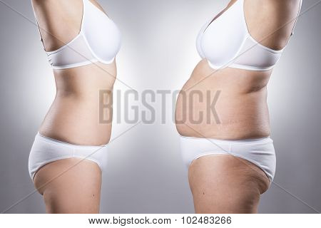 Woman's Body Before And After Weight Loss