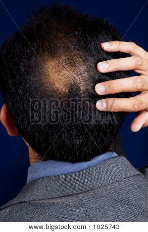 Bald Spot