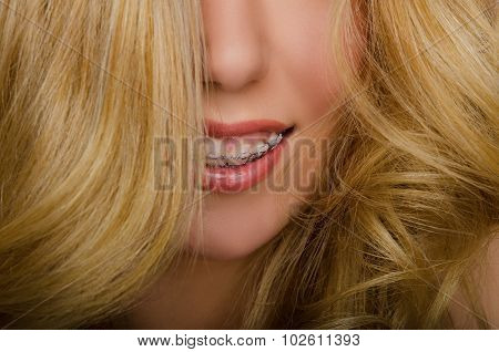 Face Of Beautiful Woman With Long Hair And Braces