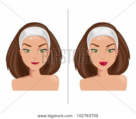 Lips Before And After Surgery. Vector Illustration