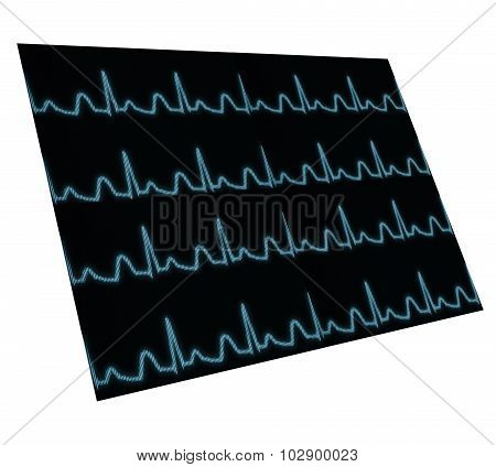Screen With Pulse Wave Located In Space. Isolated. Element For Your Work
