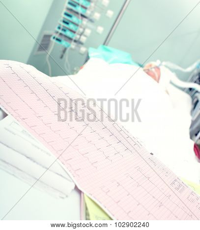 Electrocardiogram On A Background Of Seriously Ill Patients