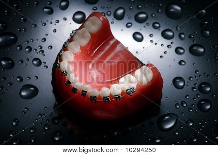 Dentures with braces