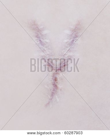 Scar Letter Y On Human Skin
