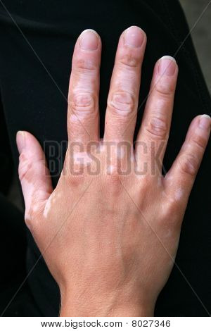 A hand with vitiligo skin condition
