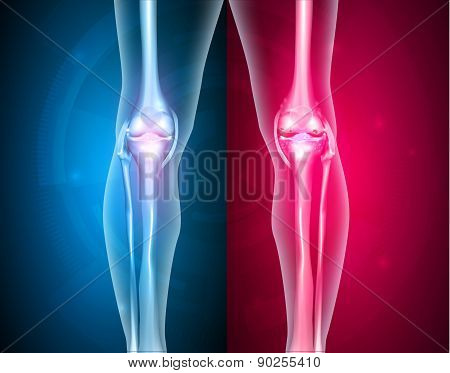 Knee Joints Healthy And Unhealthy