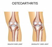 stock photo of knee  - Healthy knee and knee with osteoarthritis on a white background - JPG