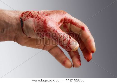 Bloody Man's Hand With A Wound