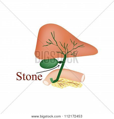 Stone bile duct. Gallbladder, duodenum, pancreas, bile ducts. Vector illustration on isolated backgr