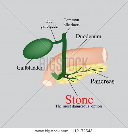 Stone pancreatic bile duct.  The gall bladder, duodenum, bile ducts. Vector illustration on a gray b