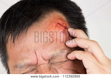 Selective Focus  On Painful Red Swollen Forehead Injury