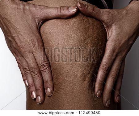 Women's Skin Problem - Cellulite
