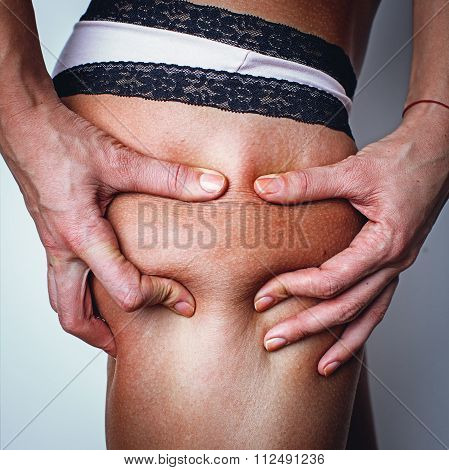 The Woman Squeezes A Skin On A Hip For Check On A Cellulitis - Profile View