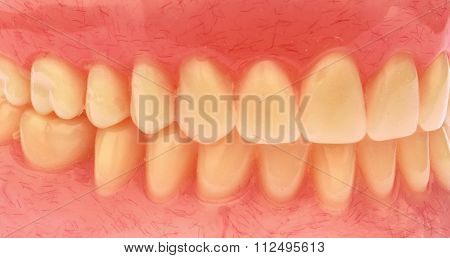 Close-up of dental prosthetic