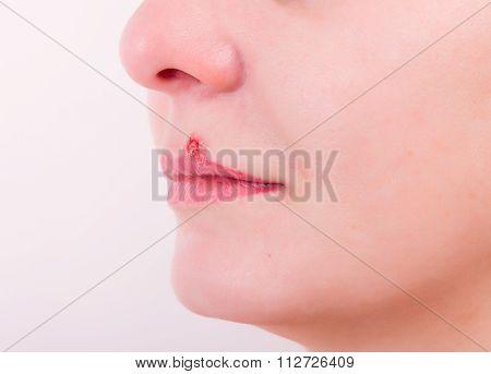Girl lip herpes diseased