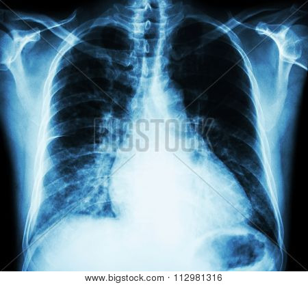 Heart Failure  ( Film X-ray Chest Pa Upright : Show Cardiomegaly And Interstitial Infiltrate Both Lu